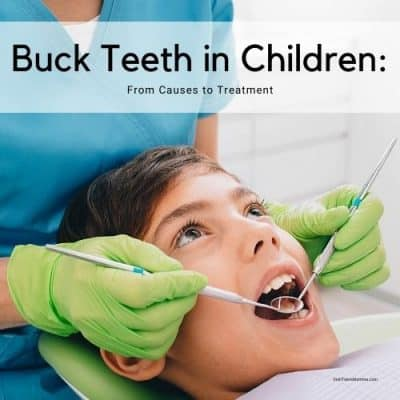 Buck Teeth in Children: From Causes to Treatment